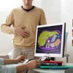 Profilaktyka schorzeń wątroby a właściwy poziom cholesterolu